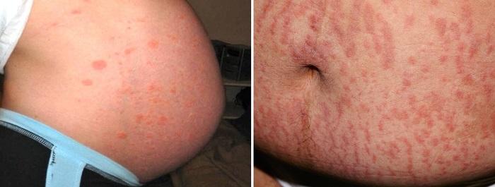 Зудящие уртикарные папулы и бляшки беременных