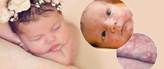 Измененный цвет кожи у маленьких детей