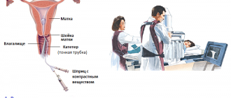 Процесс выполнения гистеросальпингографии