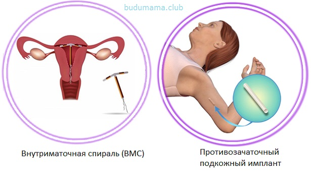 Имплантационные контрацептивы
