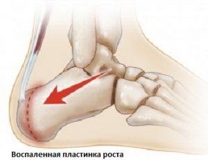 Когда болят ноги у детей thumbnail