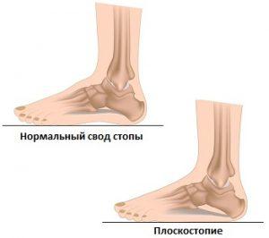 Почему у ребенка могут болеть ноги