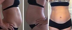 Живот на втором месяце беременности