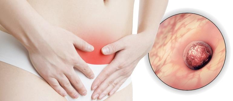 Боль при имплантации эмбриона