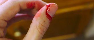 Кровь у женщины на пальцах
