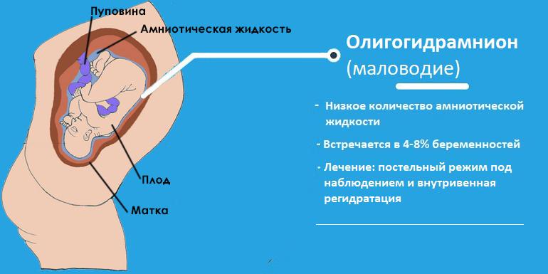 Олигогидрамнион (маловодие)