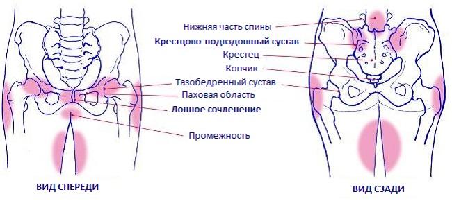 Схема боли в области таза при беременности