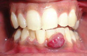 Гранулема зуба при беременности