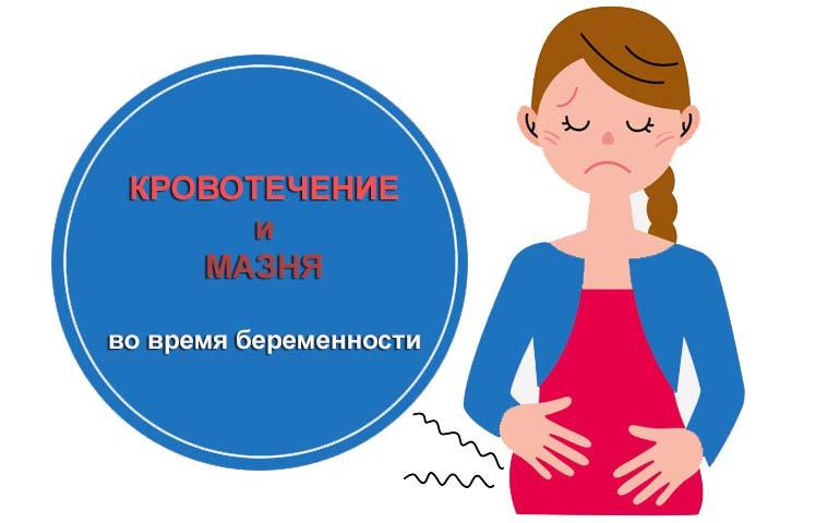 Кровотечение и мазня во время беременности