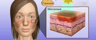 Мелазма во время беременности