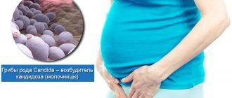 Кандидоз у беременной женщины