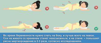 Правильные и неправильные позы для сна во время беременности