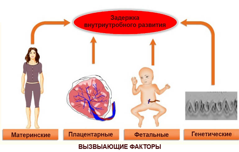 Факторы риска задержки внутриутробного развития