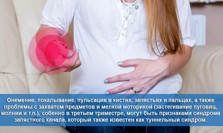 Симптомы туннельного синдрома при беременности