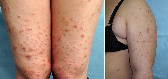 Атопический дерматит беременных