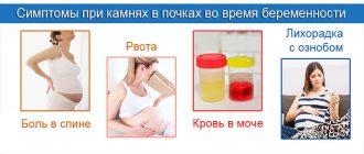 Симптомы камней в почках при беременности