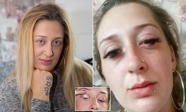 Стейси Луиз Болл с аллергией после наращивания ресниц