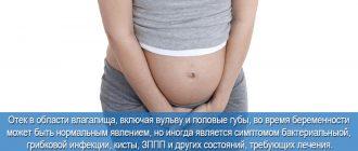 Отек влагалища при беременности